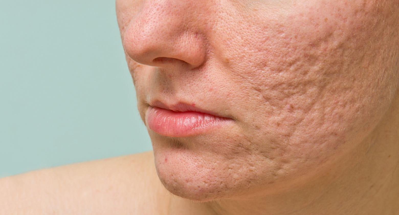 Cicatrices d acné   Les conséquences de l acné   Eucerin c6f52c27578