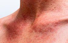 eucerin peau hypersensible et sujette aux rougeurs peau du visage sujette aux rougeurs. Black Bedroom Furniture Sets. Home Design Ideas